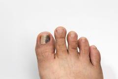 Ongle de pied noir et meurtri sur le blanc photos libres de droits