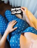 Onherkenbaar zwanger de ultrasone klankschot van de vrouwenholding stock afbeeldingen