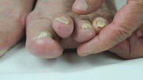 Onicomicosi Micosi dei chiodi dei piedi archivi video