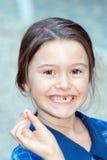 Ontbrekende tand Royalty-vrije Stock Afbeeldingen