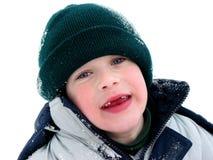 Ontbrekende tanden Stock Foto's