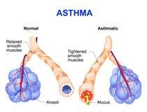 Ontsteking van de bronchie die astma veroorzaken Stock Afbeelding