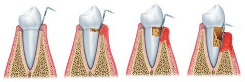 Ontwikkeling van periodontitis vector illustratie