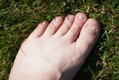Onychomycosis Грибковая инфекция ногтей ног стоковая фотография rf
