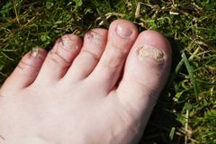 Onychomycosis. Fungal infection of nails of feet. Onychomycosis. Fungal infection of nails of young man`s feet royalty free stock photography