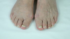 Onychomycosis fungal nail infection stock video