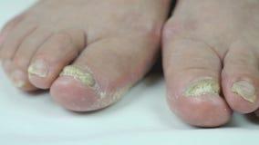 Onychomycosis Infección por hongos de uñas del pie almacen de video