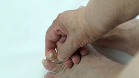 Onychomycosis met schimmelspijkerbesmetting stock footage