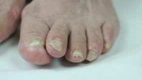 Onychomycosis Schimmelbesmetting van spijkers van voeten stock video