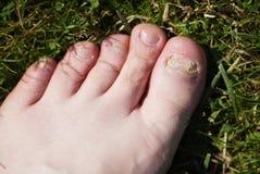 Onychomycosis Svamp- infektion av spikar av fot royaltyfri fotografi