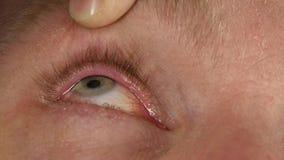 Ooginflamnmation na het harde werk bij de computer, mens die vloeibare drug druipen aan zijn oog stock footage