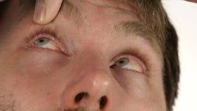 Ooginflamnmation na het harde werk bij de computer, mens die vloeibare drug druipen aan zijn oog 4K stock footage