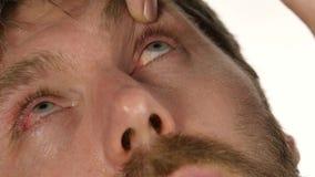 Ooginflamnmation na het harde werk bij de computer, mens die vloeibare drug druipen aan zijn oog 4K stock video