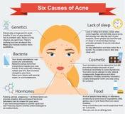 Oorzaken van acne Van huidproblemen en ziekten schoonheidsinfographics stock illustratie