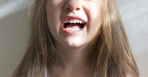 Op witte witte gezonde de glimlachtanden van de achtergrond het glimlachen meisjessneeuw stock foto