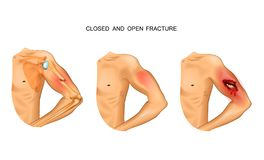 Open and closed fracture. Vector illustration of open and closed fracture vector illustration
