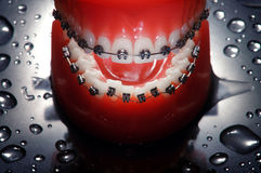 Open dentures with braces Stock Photos