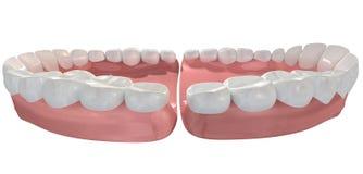 Open False Human Teeth Extreme Closeup Royalty Free Stock Photos