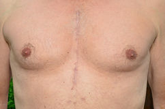 Open Heart Surgery. Chest of a man who has undergone open heart surgery 7 months previously, showing how the scars have healed royalty free stock photos