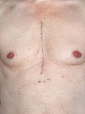 Open Heart Surgery. Scar from open heart surgery, where the sternum was cut in two, and the rib cage sprung. Below the scar holes show where the drains and royalty free stock photography