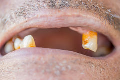 Open mouth with caries Royalty Free Stock Photo