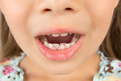 Open mouth of a little girl with calf's and permanent teeth Royalty Free Stock Image