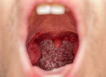 Open mouth view of tonsils. Closeup view of open mouth with tonsils royalty free stock photography