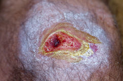 Open wound. Open knee wound showing red granulation tissue and some peripheral scabs stock images