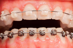 Opened mouth with ceramic and metal braces Stock Photography
