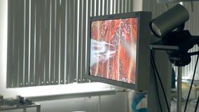 Operação cirúrgica no abdômen video estoque