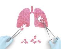 Operación de los pulmones (concepto del rompecabezas de la medicina) Fotografía de archivo
