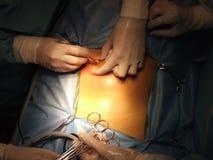 Operación en el abdominal Imagenes de archivo