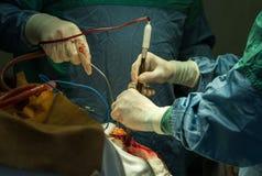 Operacja trepanacja czaszka obraz stock