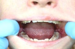 Operacji usunięcie mądrość zęby - eights Zaszywanie, postoperative okres zdjęcia stock