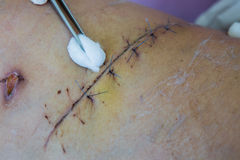Operation suture Royalty Free Stock Photos