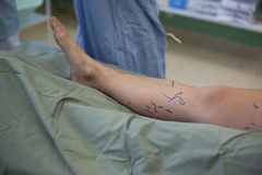 Operation of varicose veins in operating room Royalty Free Stock Photo