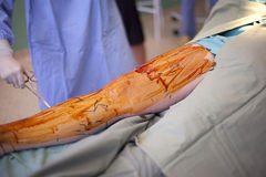 Operation of varicose veins in operating room Stock Photography