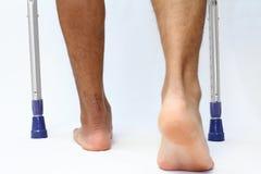 Operationsnarbe von Achillessehne Abbruch und crutchs Stockbild