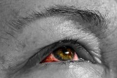 Ophthalmia - ögonsjukdom - bindhinneinflammation - rosa färgöga - blodigt ey royaltyfria bilder
