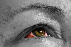 Ophthalmia - ασθένεια ματιών - επιπεφυκίτιδα - ρόδινο μάτι - αιματηρό ey στοκ εικόνες με δικαίωμα ελεύθερης χρήσης