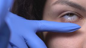 Ophthalmologist dripping female eyes with eye drop before vision examination. Stock footage stock video