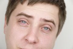 Ophthalmology, allergies, tearing. Portrait of a man who is crying royalty free stock photography