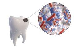 Opinião de cárie dental e de close-up os micróbios que causam cáries Fotos de Stock Royalty Free