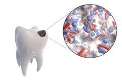 Opinião de cárie dental e de close-up os micróbios que causam cáries Fotografia de Stock