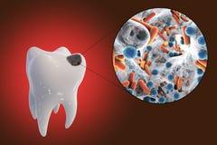 Opinião de cárie dental e de close-up os micróbios que causam cáries Foto de Stock Royalty Free
