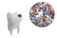 Opinião de cárie dental e de close-up os micróbios que causam cáries Imagem de Stock Royalty Free