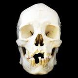 Opinião dianteira do crânio humano fotografia de stock royalty free