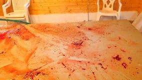 A opinião do close-up o homem forte entrega escalas e sangue da limpeza da tabela de enfaixamento Lavagem e limpeza do sangue con filme