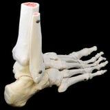 Opinião traseira do lado do esqueleto do pé fotografia de stock royalty free