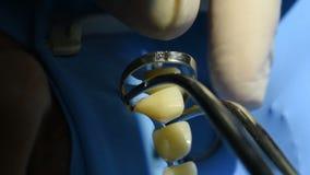 Opinión del primer de dientes en cabine dental almacen de metraje de vídeo